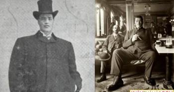 """Người đàn ông """"vừa lùn vừa cao"""" độc nhất vô nhị trong lịch sử y học"""