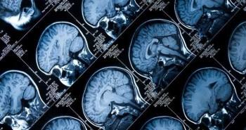 Người đàn ông mất cảm giác sợ hãi sau khi phẫu thuật não