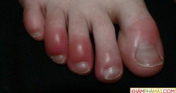 Cách chữa bệnh cước tay chân vào mùa đông rét đậm, rét hại