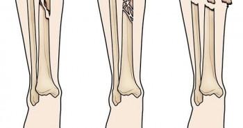 Mất bao lâu để hồi phục khi gãy xương cẳng chân?