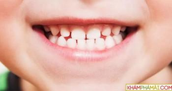 Các nhà khoa học tìm ra cách có thể giúp con người mọc lại răng
