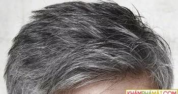 Vì sao bây giờ nhiều người trẻ mà tóc đã bạc trắng?
